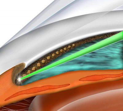 slt glaucoma laser bethlehem eye associates