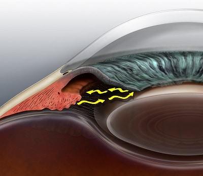 closed angle glaucoma bethlehem eye associates